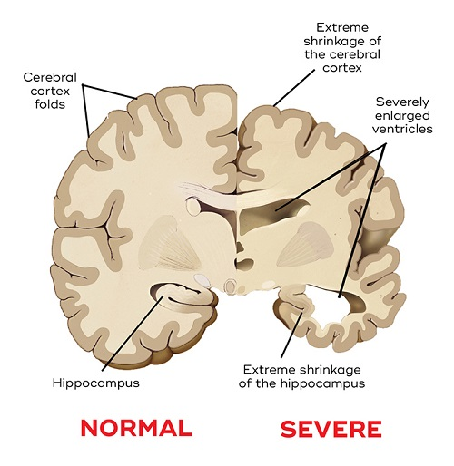 Dementia Brain Shrinkage.jpg